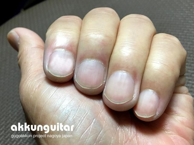 nail-0701b.jpg